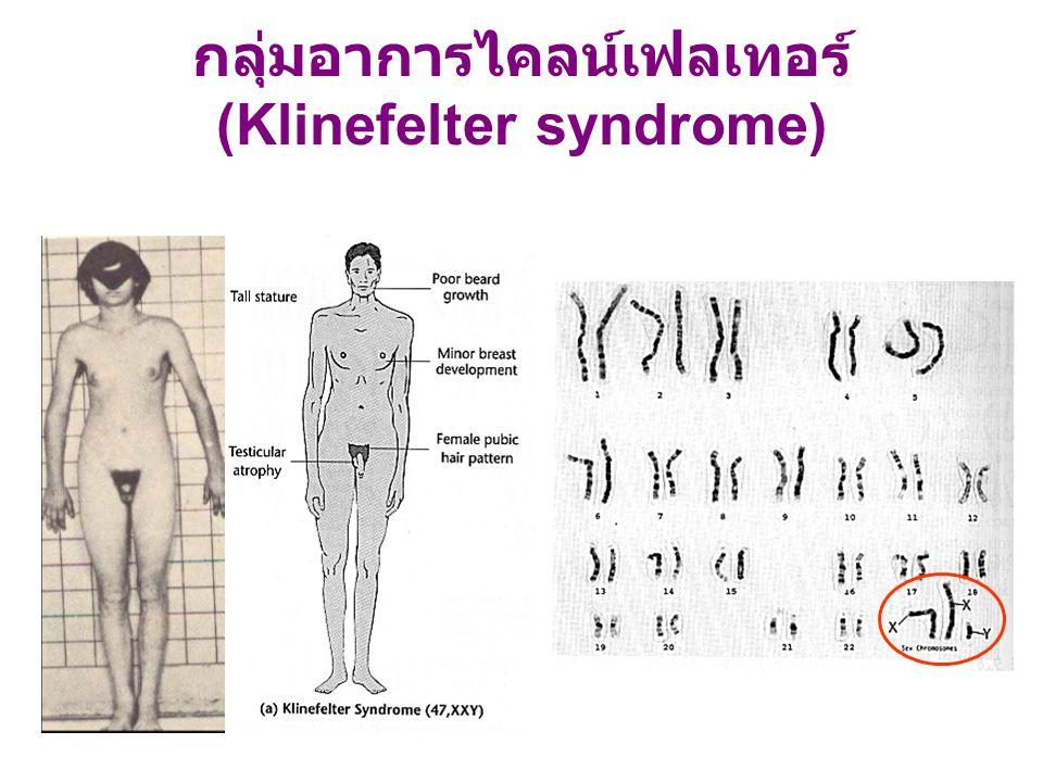 กลุ่มอาการไคลน์เฟลเทอร์ (Klinefelter syndrome)