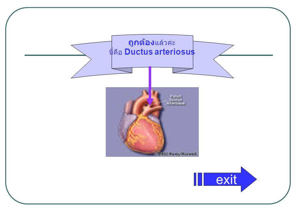 ถูกต้อง แล้วค่ะ นี่คือ Ductus arteriosus exit