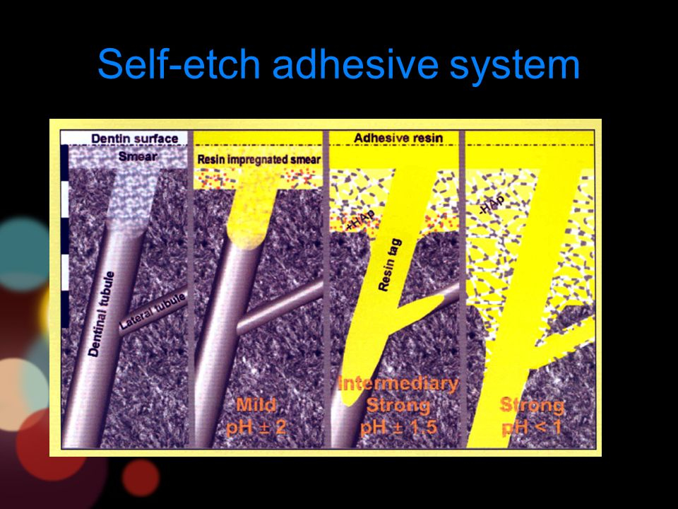 Self-etch adhesive system