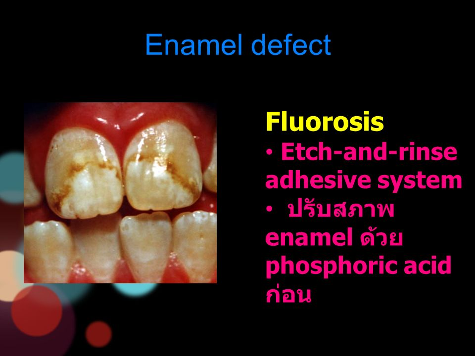 Enamel defect Fluorosis Etch-and-rinse adhesive system ปรับสภาพ enamel ด้วย phosphoric acid ก่อน